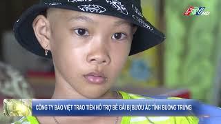 Công ty Bảo Việt trao tiền hỗ trợ bé gái bị bướu ác tính buồng trứng - Nguồn :  ATV
